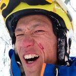 モリヤーマンです!! 調子にのって滑っていたら激しく転んでスキーのノーズが顔面に刺さるの巻  in ZAO